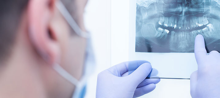 What Does An Oral Surgeon Do?